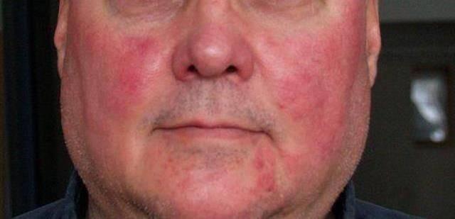 Аллергия после алкоголя появляется краснота